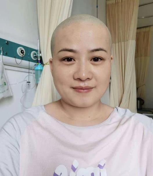 岳云鹏老婆回应生病剃光头 只是需要做个小手术